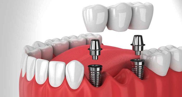 Почему имплантация зубов, является лучшим способом вернуть здоровую улыбку